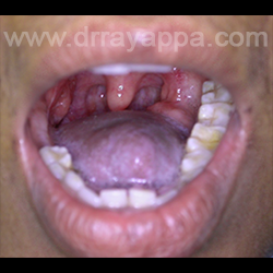 prosthosis